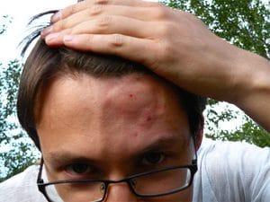 Чим зняти пухлина після укусу оси?