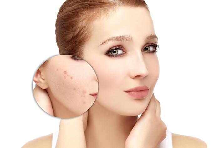 Причины появления подкожного клеща на лице