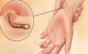 Какие симптомы при чесотке