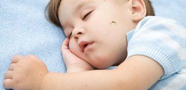 Чем помазать укусы комаров ребенку, чтобы снять опухоль и чесотку